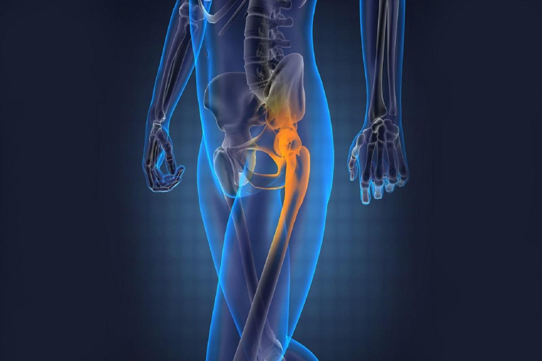 Как лечить тазобедренные суставы в домашних условиях