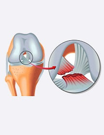 acl reconstruction in delhi