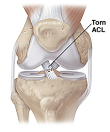 acl-reconstruction-in-delhi