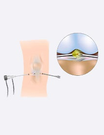 arthroscopy in delhi