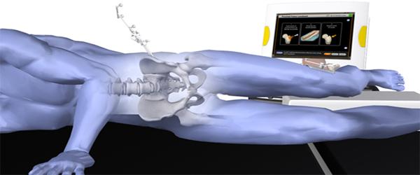 hip-replacement-surgeon-in-delhi