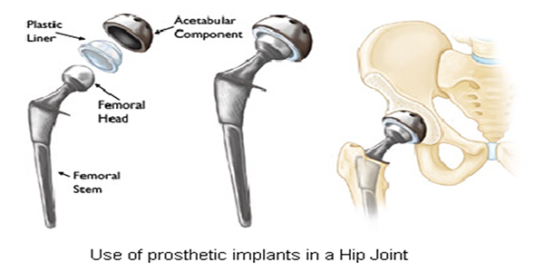how to prepare for a hip replacement surgery