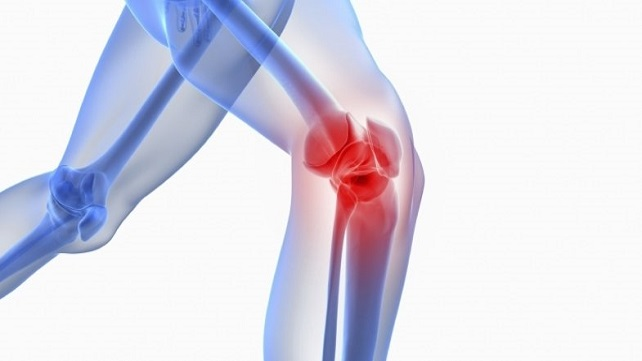 osteoarthritis-of-the-knee