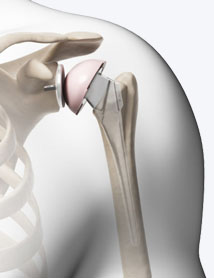 shoulder-replacement-surgery-delhi