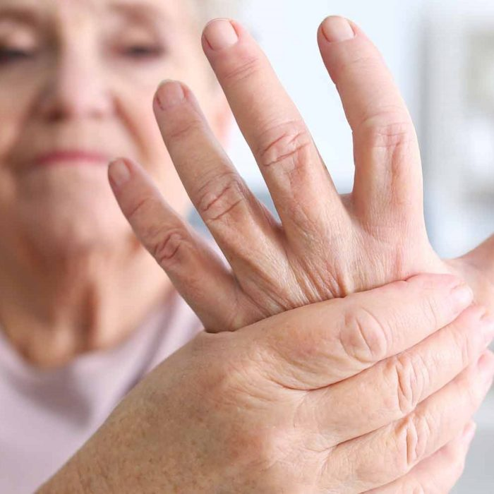 Manage Arthritis Pain
