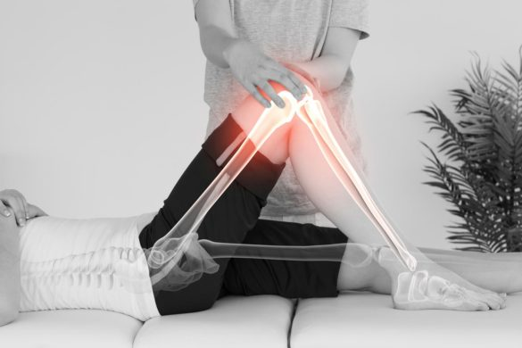 Total-Knee-Replacement-